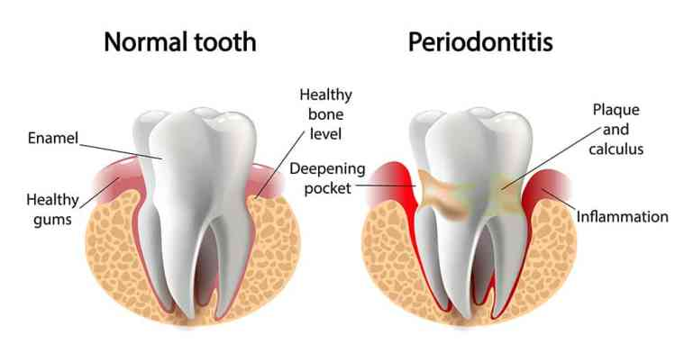 normal tooth versus a tooth with periodontitis/gum disease with aging teeth