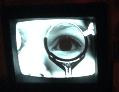De ziekte van Crohn en oogklachten