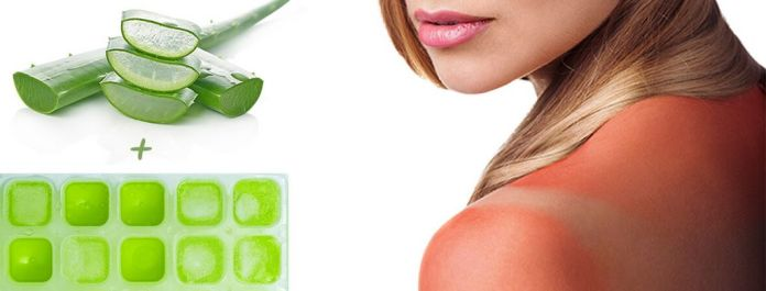 Aloe Vera Ice Cubes: The Best Sunburn Relief - Look4ward