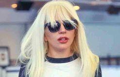 Lady GaGa: Blutergüsse am Bein