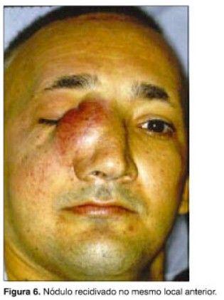 Tipo de tumor que fue extirpado al joven. Foto de Internet
