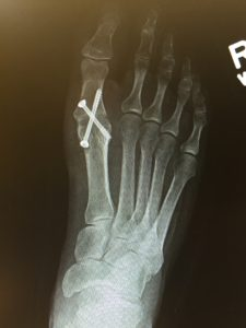 Having my big toe fused set me back a couple of years. Time to get back on my bike and get in shape.