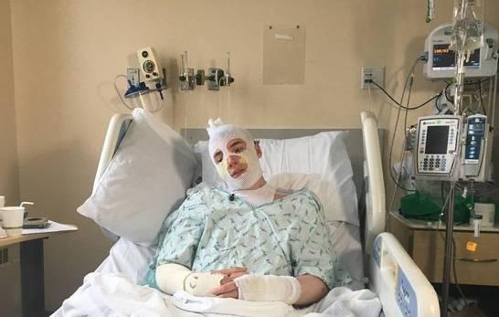 Joven sufre graves quemaduras al salvar a su sobrina de un incendio