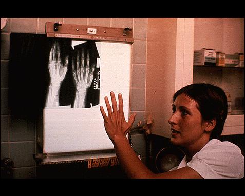 099 - X-ray of hand, NAIC
