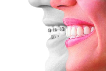 #InvisalignTalk on Straight Teeth - Invisalign compared to braces