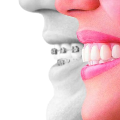 Invisalign Straight Talk on Straight Teeth #InvisalignTalk
