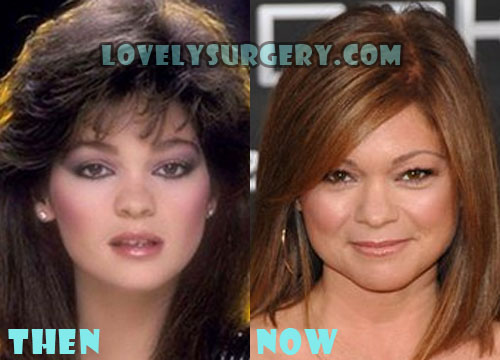 Valerie Bertinelli Plastic Surgery Before And After Rumor