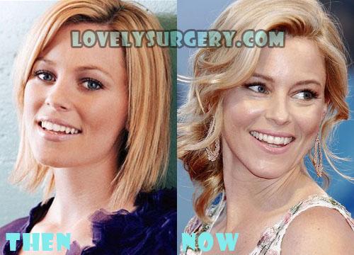 Elizabeth Banks Plastic Surgery Botox