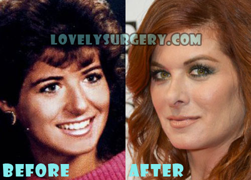 Debra Messing Plastic Surgery
