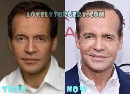 Louis Licari Plastic Surgery Botox, Facelift
