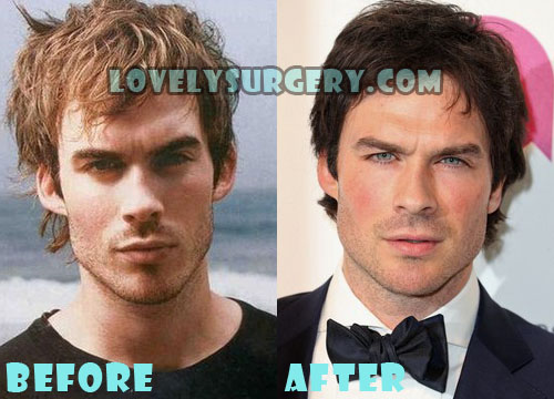 Ian Somerhalder Plastic Surgery
