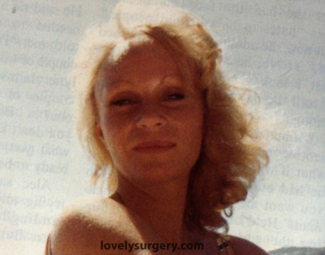 Jocelyn Wildensten before surgery