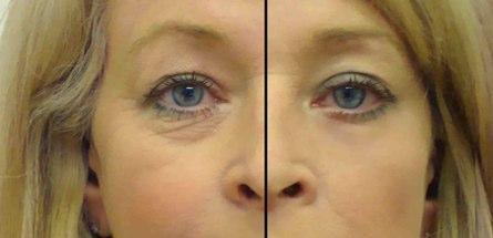 Eye Secrets Eye Lift Strips
