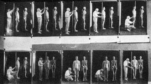 A eugenics physical (Source: understandingrace.org)