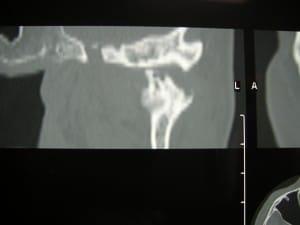 Artrosi dell'Articolazione Temporo-Mandibolare