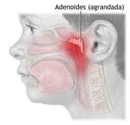 "Adenoides (""Vegetaciones"")"