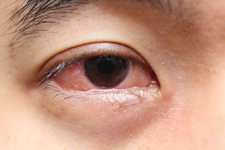 Dolor de cabeza y ojos rojos al despertar