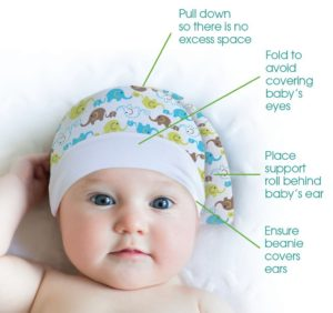 treating torticollis and plagiocephaly