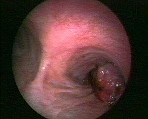 Bronchial carcinoma