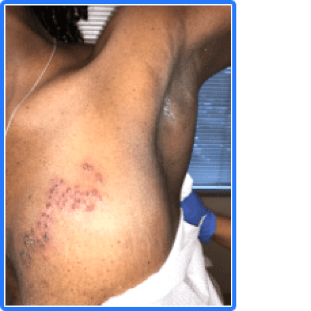 Shingles (herpes zoster) on the chest of a patient