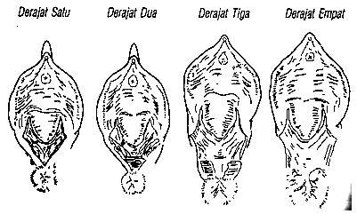 gambar 1 laserasi perineum