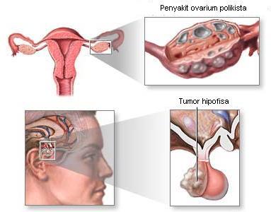 Amenore (tidak menstruasi)