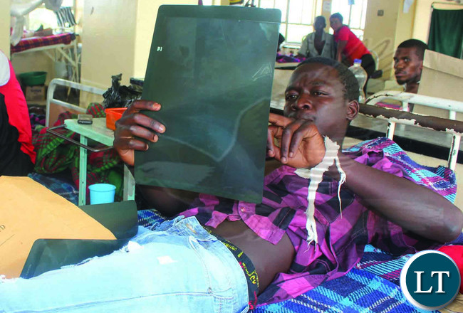 NSAMA Bwalya, an illegal gemstone miner of Lufwanyama district nursing gunshot wounds in Kitwe Teaching Hospital yesterday. PICTURE: NKOMBO KACHEMBA