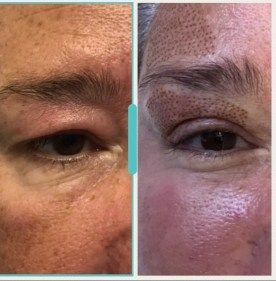 client 3 weeks after treatment