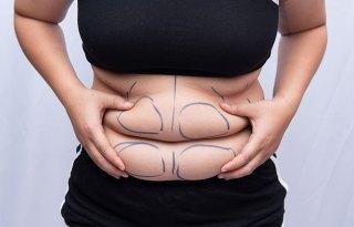 Aqualyx Fat Dissolvers