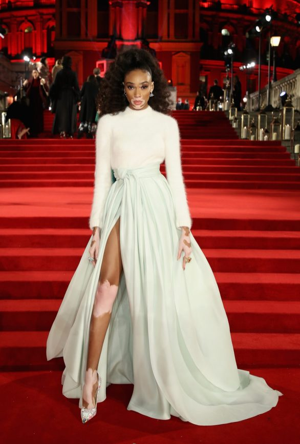 LONDON, ENGLAND - DECEMBER 04: Winnie Harlow attends The Fashion Awards 2017 in partnership with Swarovski at Royal Albert Hall on December 4, 2017 in London, England. (Photo by Mike Marsland/BFC/Getty Images)