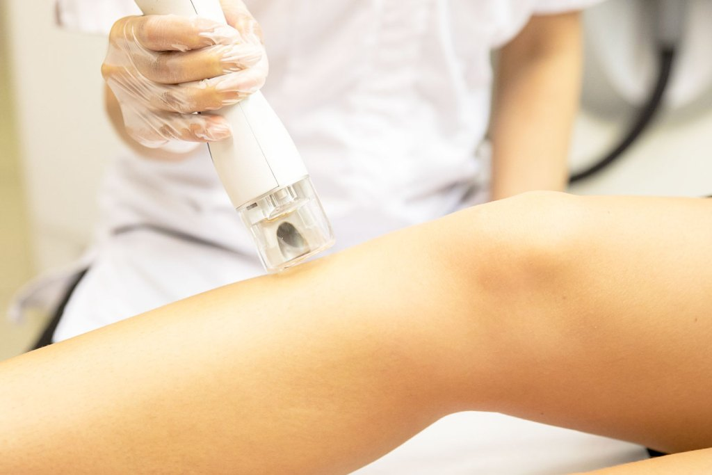 Laser Hair Removal treatment being done at Bodyvie