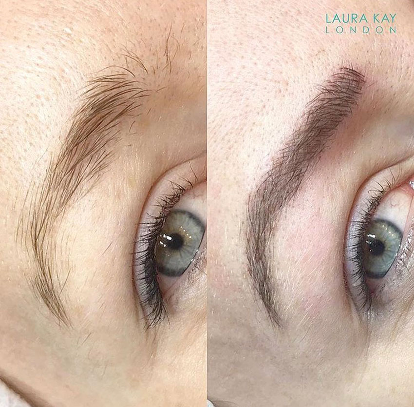 Leanne Kelsall, before and after micro-blading treatment