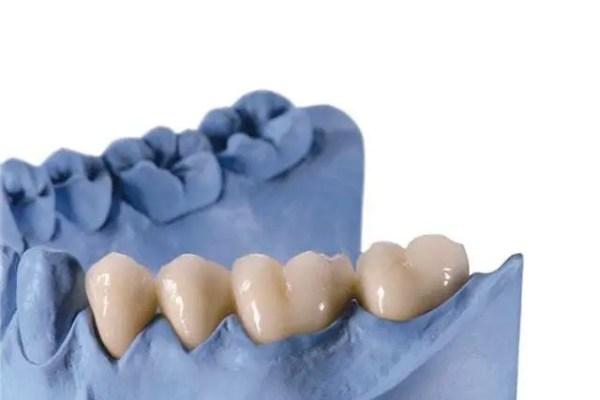 Molde feito na cor azul de boca de paciente com 4 dentes impressos em impressora 3D.