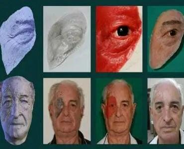 Prótese facial é criada a partir de um celular