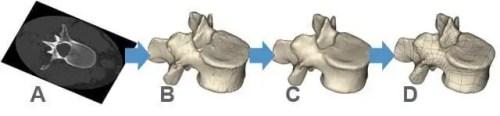 Impressão 3D de biomodelos salvando vidas humanas - Segmentação Mimics