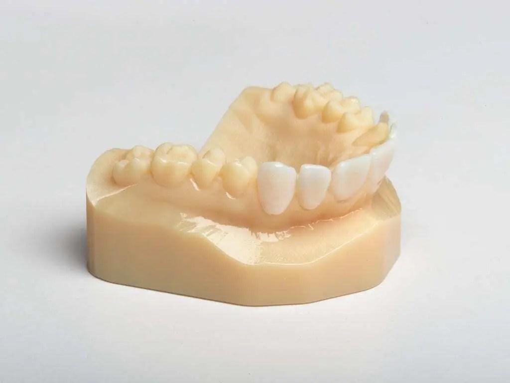 Impressão 3D de Próteses Dentárias