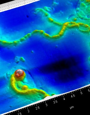 Image of B. burgdorferi under atomic force microscope. Courtesy of Dr. Eva Sapi. Lyme Disease. Lyme Bacteria.