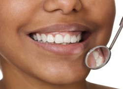 FAQ: What You Don't Know About Fillings
