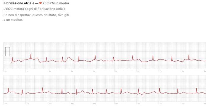 Apple Watch 4 ecco come funziona l'ECG in italiano. Video esclusivo macitynet.it