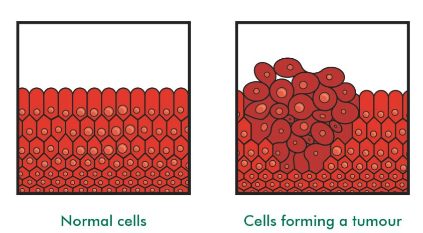 Image result for cancer cell vs normal cell