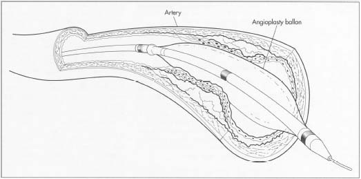 Image result for balloon angioplasty devices
