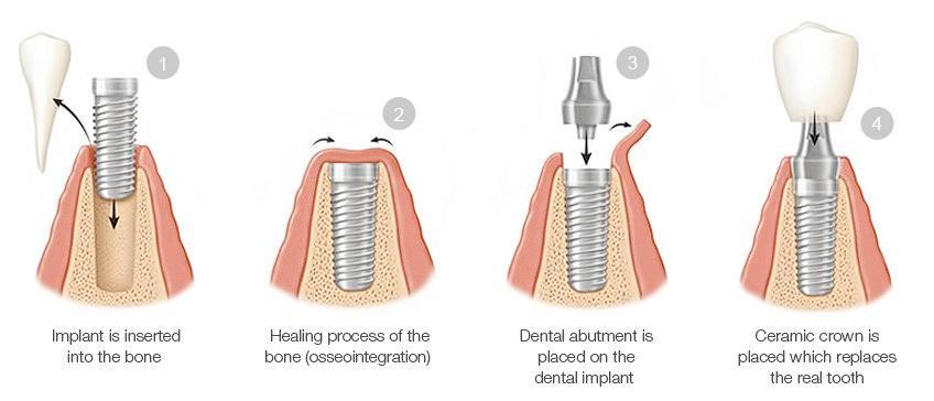 Dental Implant Gigi Tunggal- Global Estetik Dental Care