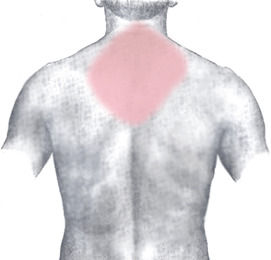 Neck Pain, Shoulder Pain
