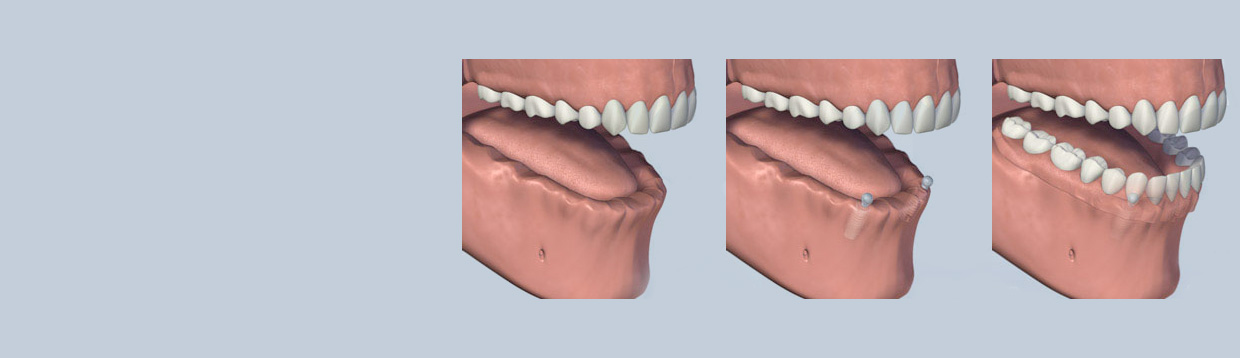 dental_implant_retained_dentures
