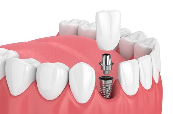 dental-implant-turkey