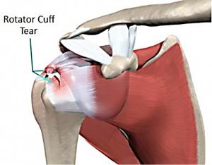 Rotator Cuff Surgery Personal Injury
