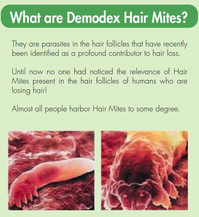 What Kills Mites Humans