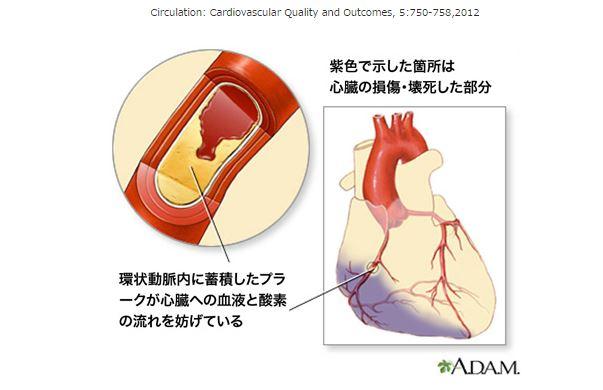 心臓血管の図