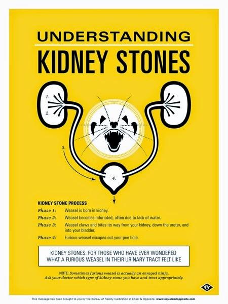 Grey Jay Kidney Stone Poster.jpg