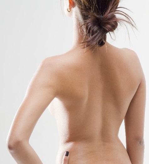 脱毛した背中全面を見せる女性